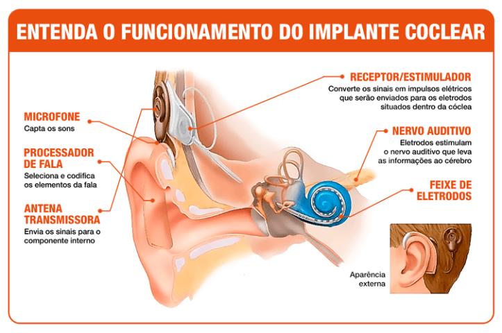 Funcionamento Implante Coclear